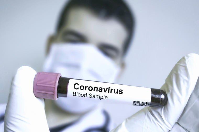 Ponašanje horoskopskih znakova tijekom pandemije korona virusa!